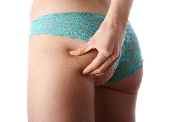 cellulit Cellulit nie mile widziany