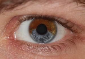 Heterochromia iridis a19403952 300x209 To jakim kolorem tęczówki patrzymy na świat ma znaczenie.